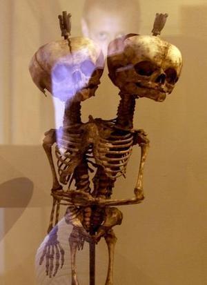Un visitante observa el esqueleto de un niño con dos cabezas y tres brazos en el museo de Kunstkamera en San Petersburgo.