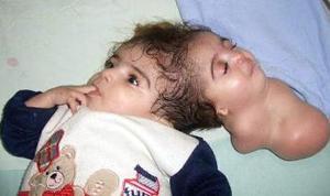 La niña egipcia Manar Magdi, de 11 meses de vida, fotografiada en la unidad de cuidados intensivos del hospital de Banha, a 45 kilómetros de el Cairo (Egipto) captada en febrero de 2005.  <p> La niña fue separada de su mellizo tras una operación quirúrgica que duró doce horas.