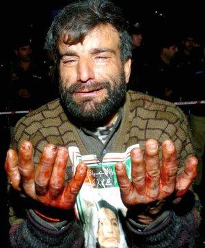 Un seguidor de la ex primera ministra paquistaní Benazir Bhutto muestra sus manos manchadas de sangre tras la explosión ocurrida durante un mitin electoral.