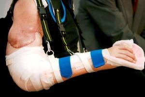 Las nuevas extremidades de Merk están aún sujetas de una hombrera y sólo pueden verse dos cicatrices profundas que se extienden en la parte superior del brazo, al tiempo que sus nuevas extremidades son de una proporción mayor a las que poseía el paciente.
