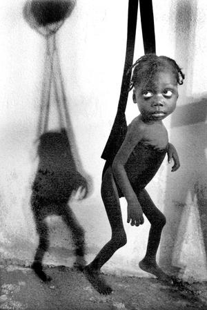 Cuando comenzó a ser tratada contra la desnutrición, Venecia Lonis, ya tenía el funeral planeado por su madre.