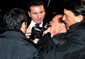 Con la boca ensangrentada, Berlusconi fue sacado inmediatamente en un coche oficial del lugar en el que se celebró un mitin de su partido y fue trasladado al hospital San Raffaele de la capital lombarda.