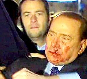 El primer ministro italiano, Silvio Berlusconi, fue agredido y herido al término de un mitin en la plaza del Duomo de Milán y tuvo que ser hospitalizado sangrando por la boca.