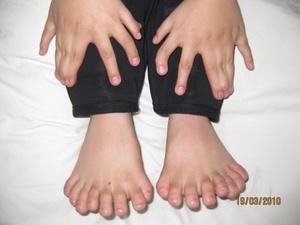 Un niño de seis años muestra sus manos y sus pies, que suman un total de 31 dedos, antes de someterse a una intervención para amputarle los dedos que le sobran, en un hospital de Shenyang, China.