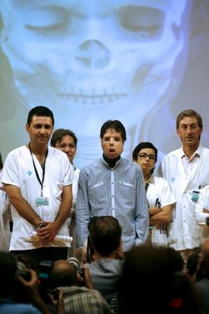 El enfermo expresó su agradecimiento al equipo médico, a la familia del donante y a su propia familia, que le ha apoyado durante años desde que sufrió un accidente que le causó el traumatismo que le deformó la cara.