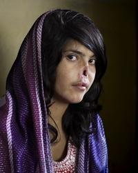 La imagen de una joven afgana con el rostro mutilado fue elegida hoy la mejor fotografía del año en los premios World Press Photo 2010.