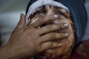 """Imagen del fotógrafo argentino Rodrigo Abd, de la agencia The Associated Press, en Idib (Siria) el 10 de marzo de 2012 que ha ganado el primer premio en la categoría de """"Noticias generales"""".  La foto muestra a Aida llorando mientras se recupera de las graves heridas causadas durante un bombardeo por el Ejército sirio en Idib (Siria). Su marido y sus dos hijos resultaron heridos de muerte durante el ataque."""