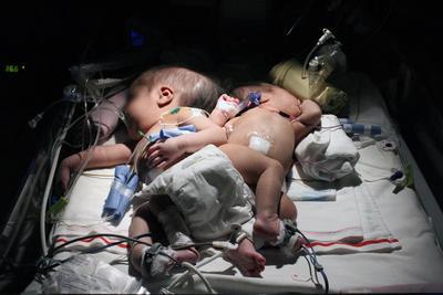 LIMA (PERÚ).- Fotografía del 29 de junio del 2016 cedida por el Ministerio de Salud de Perú, muestra a las dos bebes siamesas nacidas en la ciudad amazónica de Pucallpa (Perú). Un equipo de más de 40 médicos del Instituto Nacional de Salud del Niño (INSN) de San Borja, en Lima, separó con éxito a las siamesas que nacieron a fines de junio pasado unidas por las caderas en la ciudad amazónica de Pucallpa, en la región peruana de Ucayali.