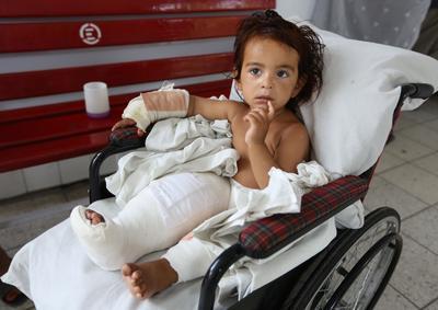 Un niño afgano víctima de la guerra  recibe tratamiento en el Hospital de Emergencia en Kabul, Afganistán.