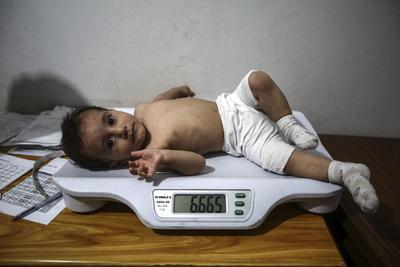 Un médico pesa a un niño en su consulta en Duma, en las afueras de Damasco, Siria. Los niños sufren desnutrición que afecta a su crecimiento por la falta de alimentos debido al asedio causado por las fuerzas gubernamentales.