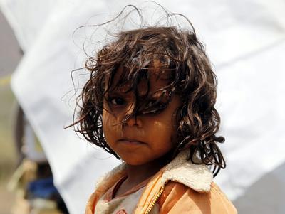 Vista de una niña que vive en el centro de personas desplazadas de la provincia de Amran, Yemen hoy 10 de agosto de 2016.