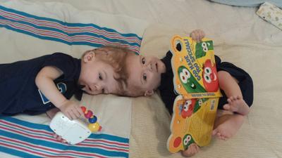 Nueva York (Estados Unidos).- Una foto proporcionada por el Hospital Infantil de Montefiore Medical Center, muestra dos hermanos gemelos siameses Anias y Jadón McDonald en un lugar no revelado. Los gemelos de 13 meses de edad que estaban unidas por sus cabezas han sido separados en una cirugía que se llevó a cabo durante 16 horas del 13 de octubre al 14 de de octubre de 2016 en el Hospital Infantil del Centro Médico Montefiore en el barrio del Bronx en Nueva York, Nueva York, EE.UU.. EFE