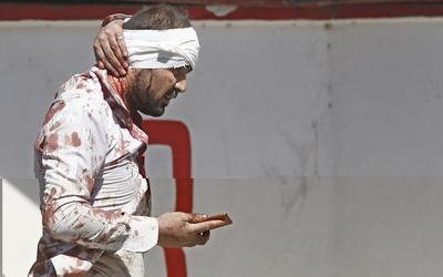 El viceministro de Interior para Asuntos de Seguridad, general Murad Ali Murad, confirmó en rueda de prensa que el atentado causó 463 heridos.