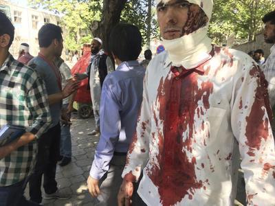 Al momento se han reportado 90 muertos y 463 heridos en el atentado.