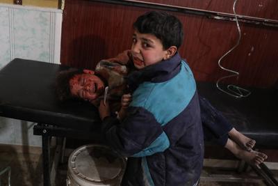 Fotografía publicada como parte de la historia 'Syria, No Exit' que muestra un niño mientras reconforta a su hermano herido después de un bombardeo el 8 de febrero de 2018 a Douma, en la localidad de Guta (Siria).