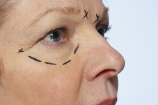 Elimina las bolsas de los ojos sin bisturí