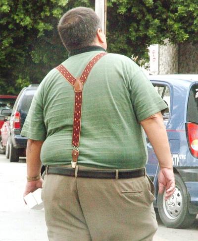 Sugiere IMSS cirugía bypass gástrico para obesidad