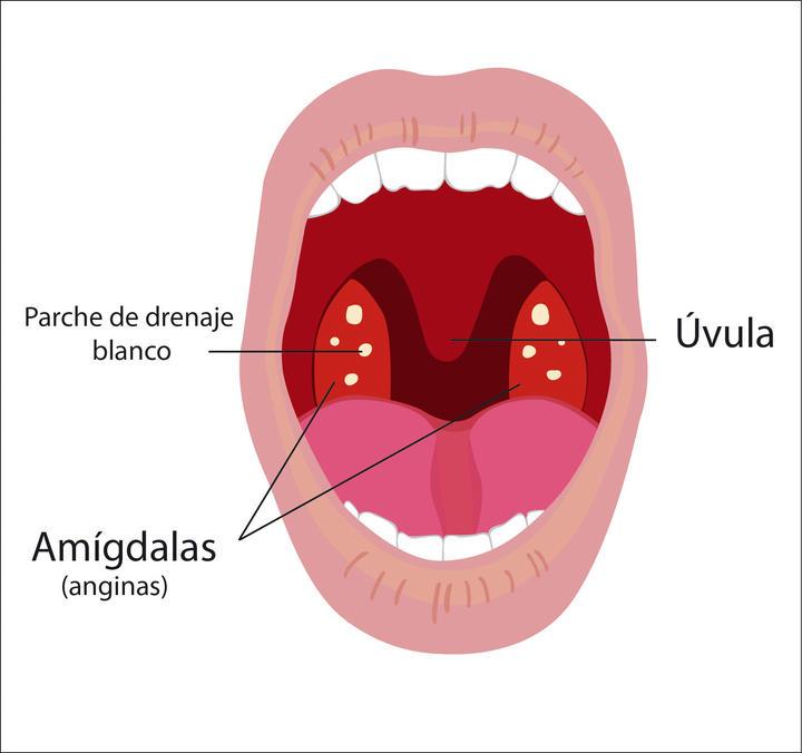 Cuándo operar las anginas?