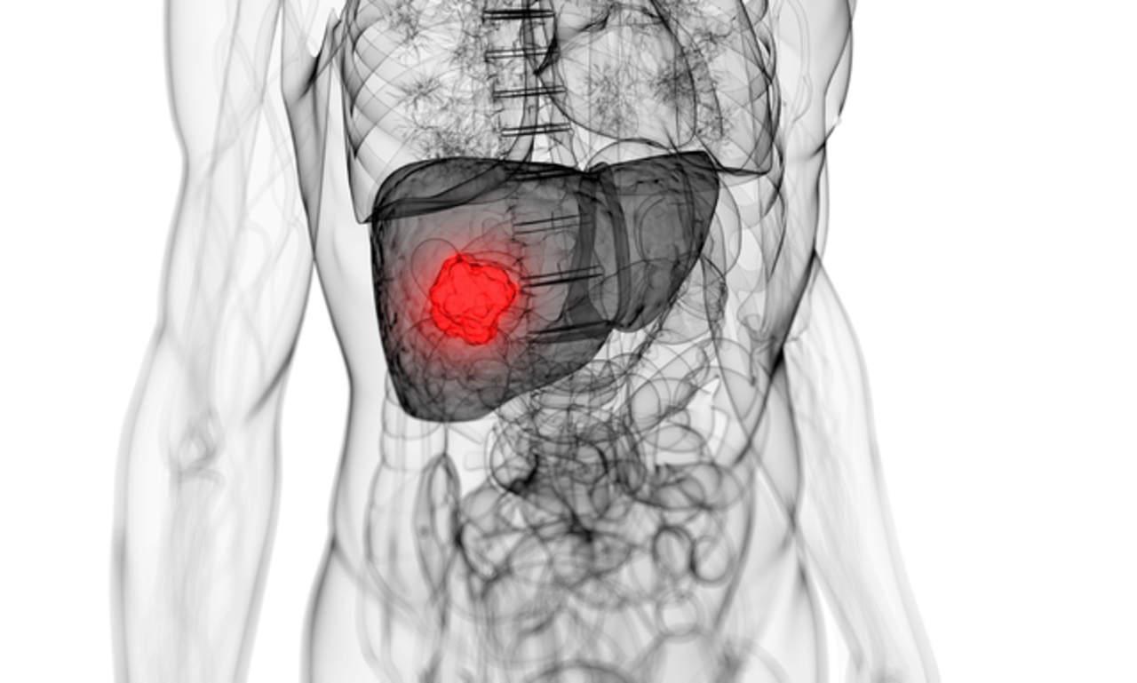Hígado, órgano del cuerpo más afectado por la hepatitis