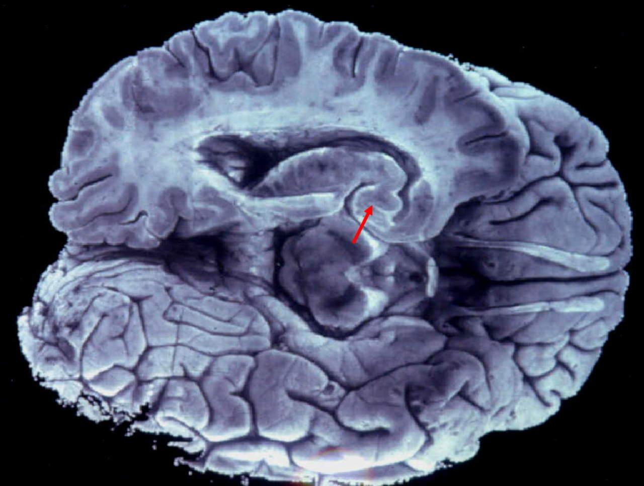 Idean un escáner cerebral portátil para recién nacidos