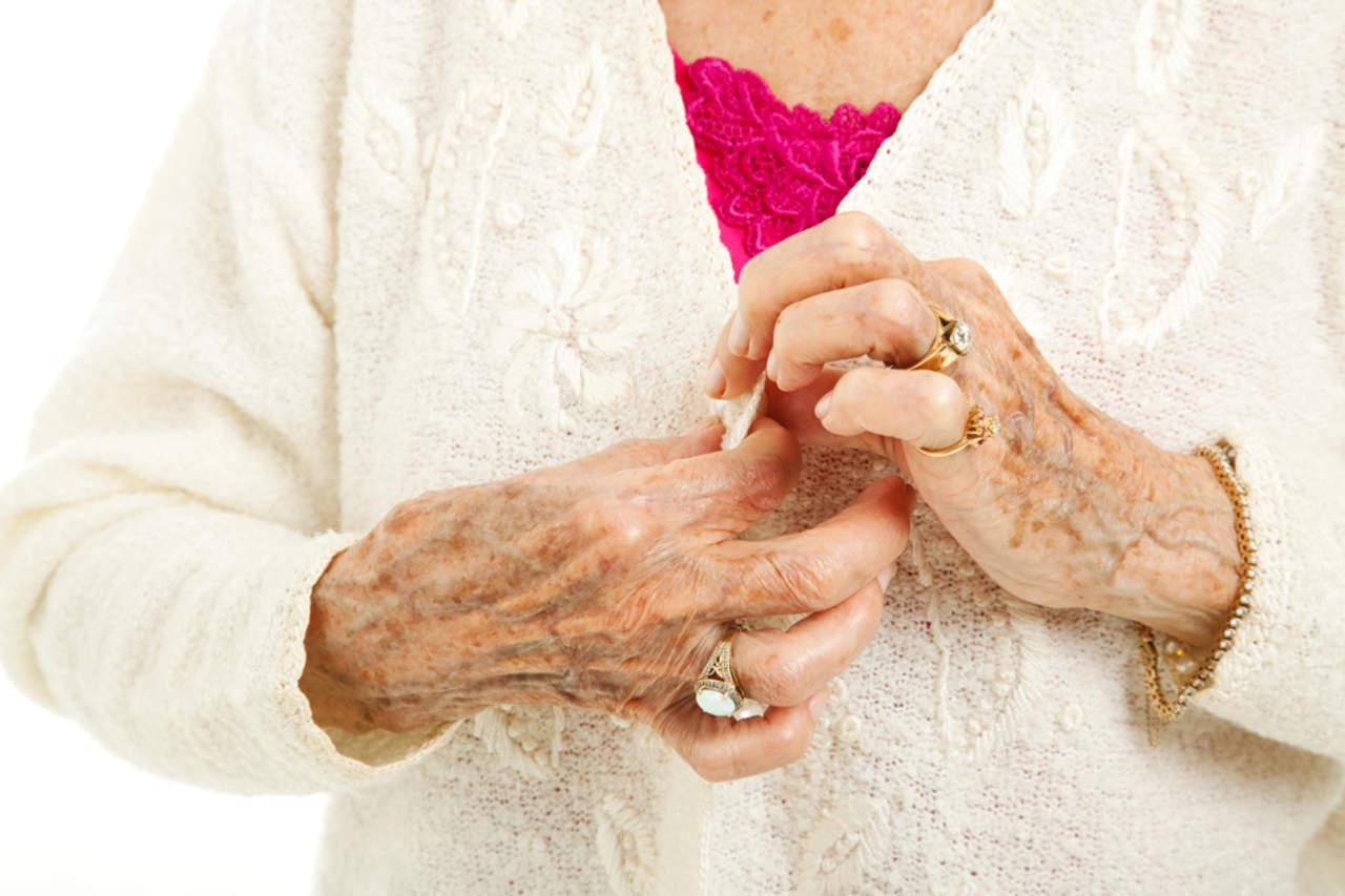 Artritis reumatoide, lo que debes saber