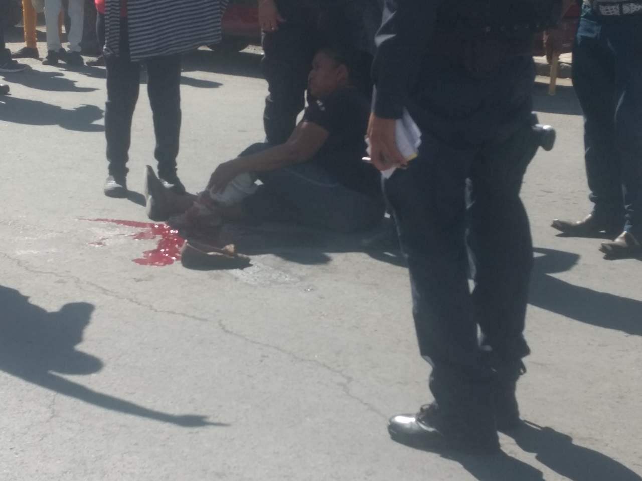 Mujer arrollada resulta con amputación parcial de pie