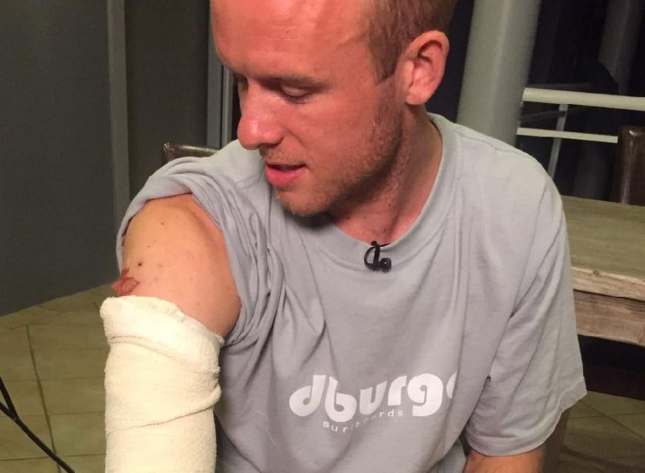 Surfista sobrevive a ataque de tiburón gracias a un video de YouTube