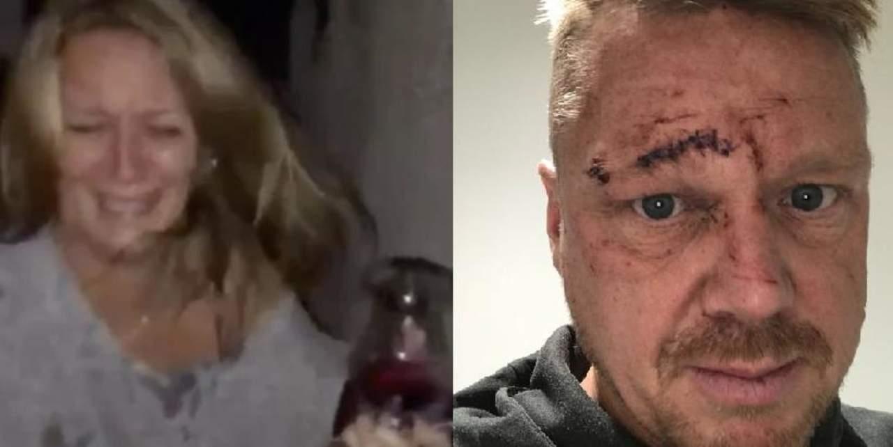 Mujer estrelló copa de vino contra el rostro de su pareja