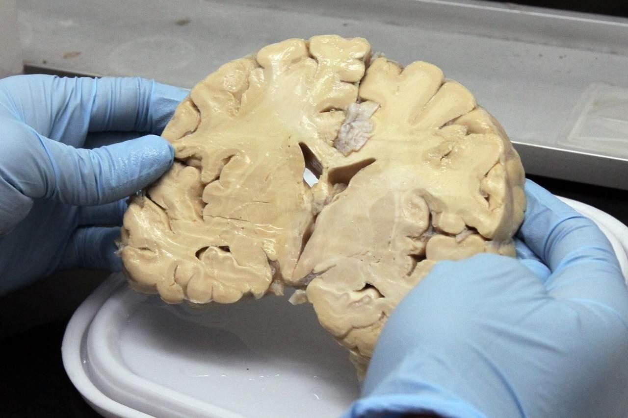 Identifican ubicación de neuronas que desencadenan trastorno