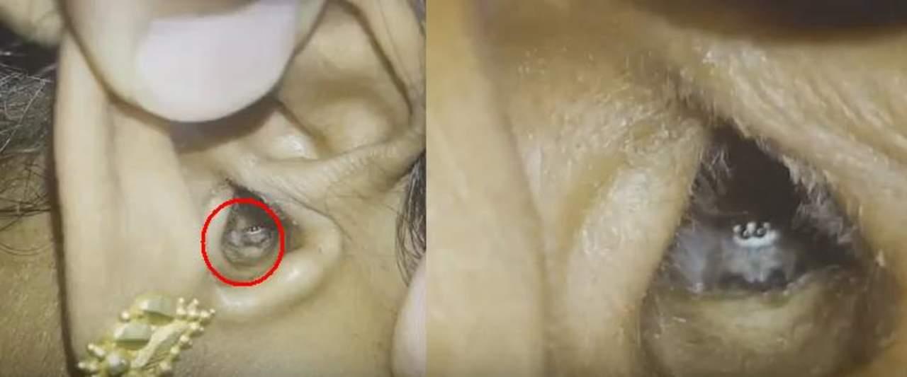 Extraen araña que vivía dentro de la oreja de una mujer
