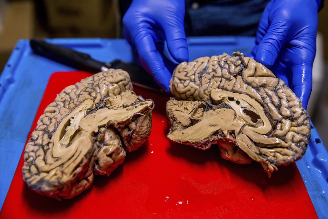 Células inmunitarias del cerebro tienen