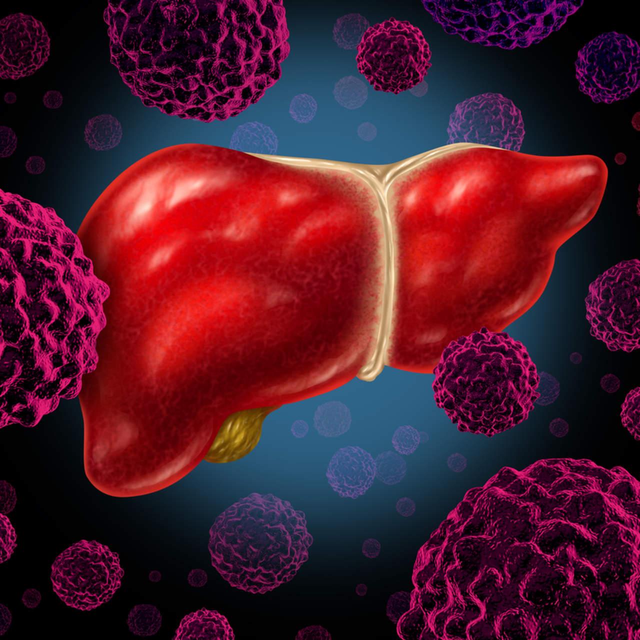 Obesidad y hepatitis aumentan incidencia de cáncer de hígado