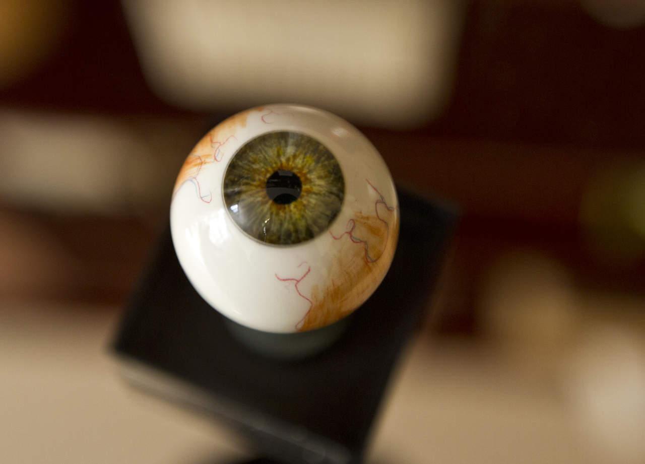 Con síntomas, sólo 20% de casos de glaucoma