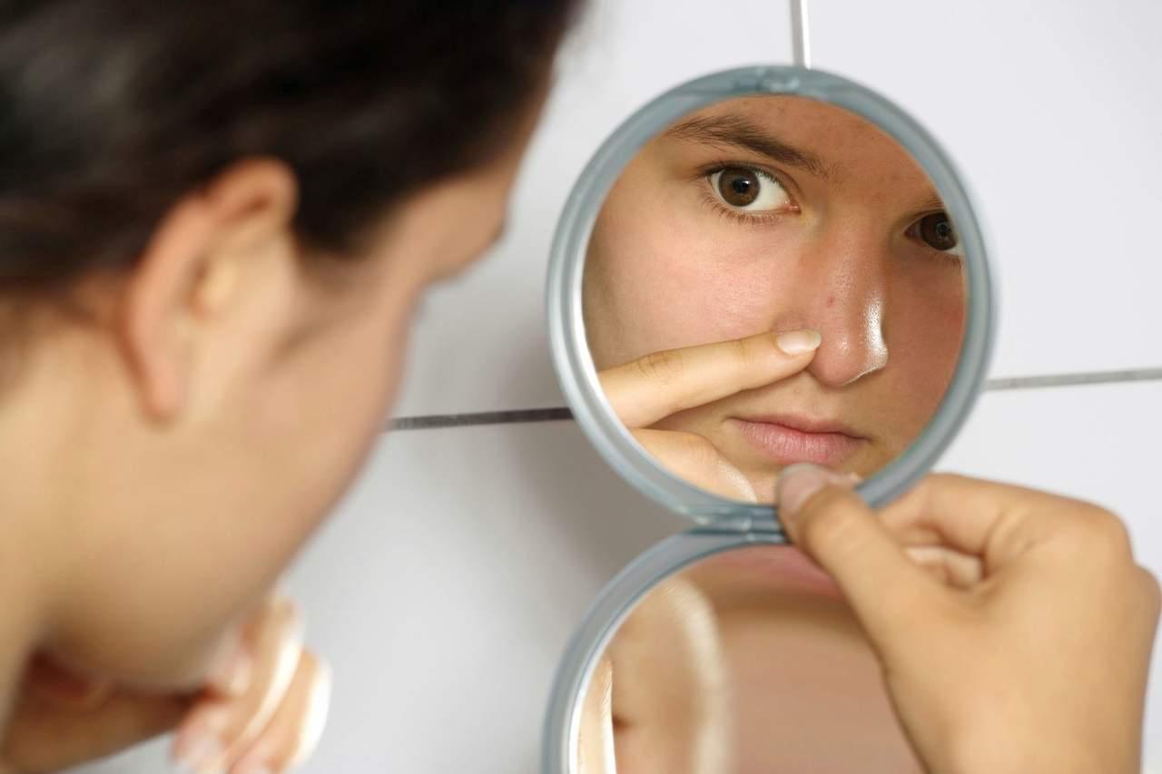 Acné es una enfermedad crónica que afecta autoestima, señala experta mexicana