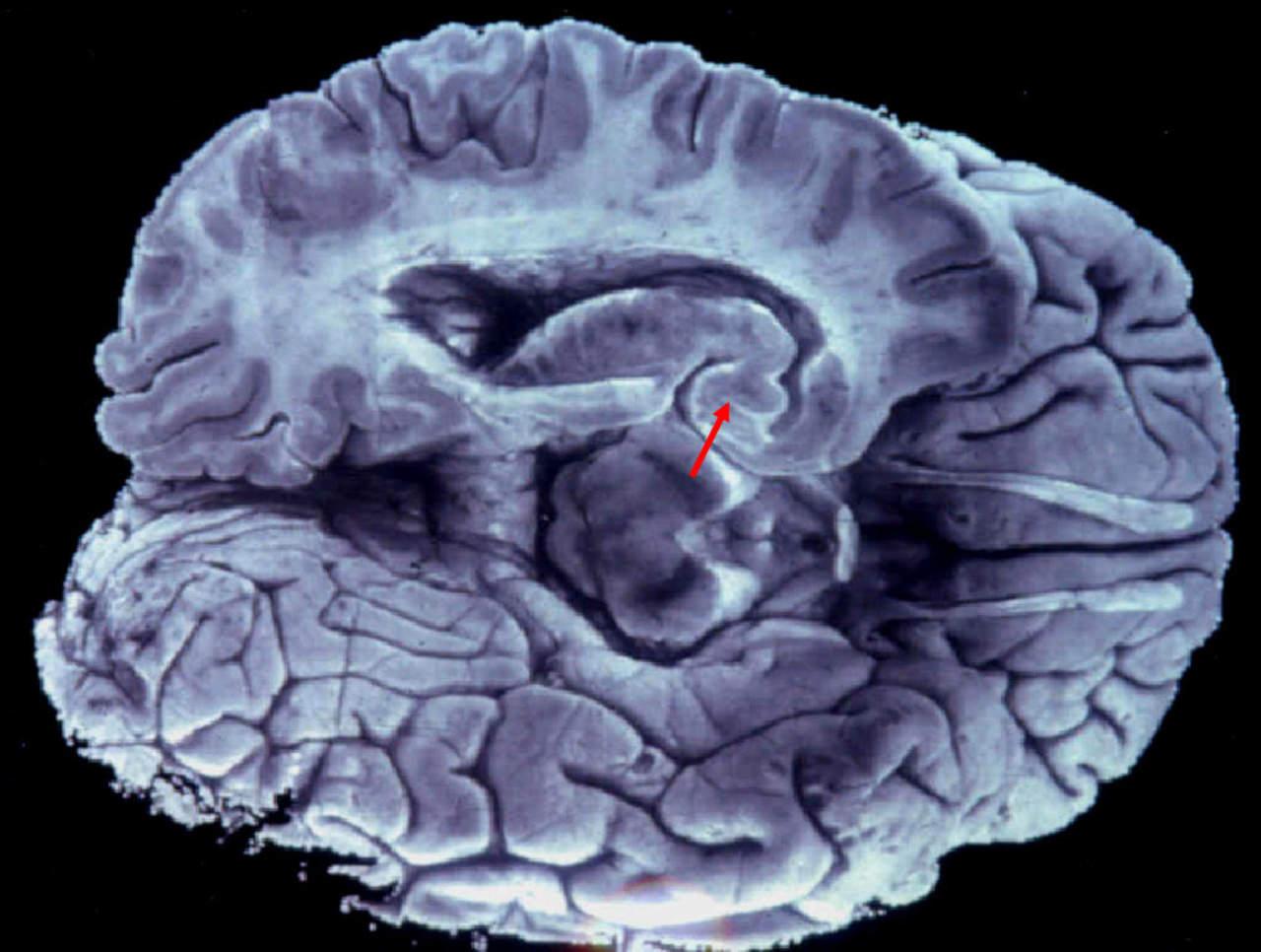 Mantener activo el cerebro ayuda a prevenir enfermedades neurológicas