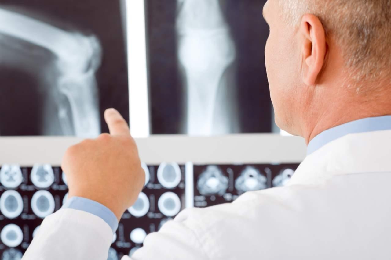 Osteoporosis es más frecuente en mujeres, pero más riesgosa en hombres