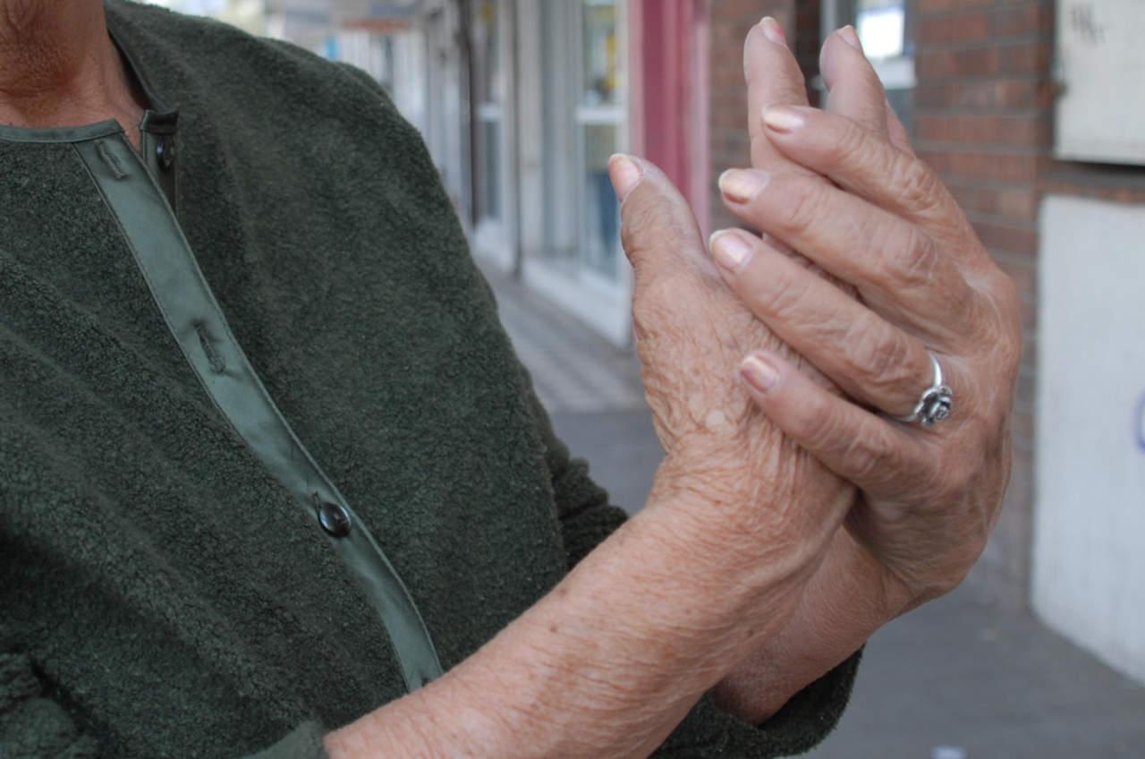 Mitos y realidades de la osteoporosis