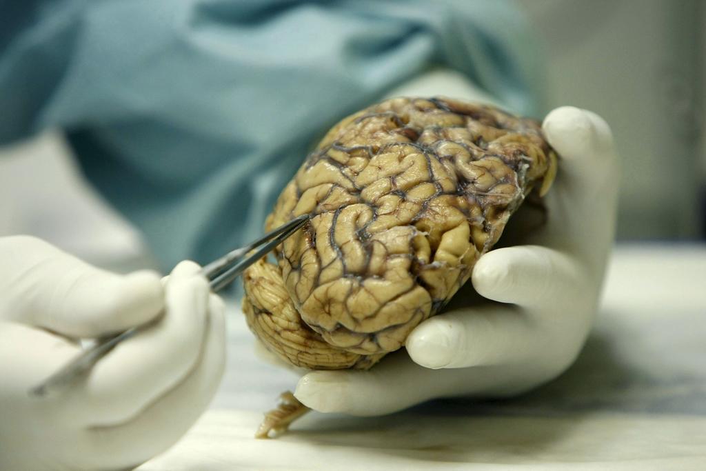 Ayuda a prevenir convulsiones en pacientes con epilepsia refractaria que no son candidatos a cirugía. (ARCHIVO)