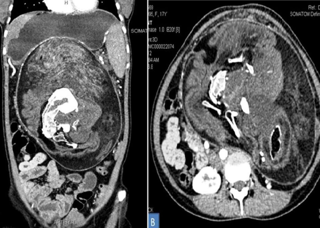 Los doctores dicen que este tipo de casos suceden en uno de cada millón de nacimientos. (INTERNET)