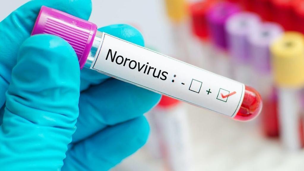 Las principales afectaciones pro Norovirus son gastrointestinales (CAPTURA)