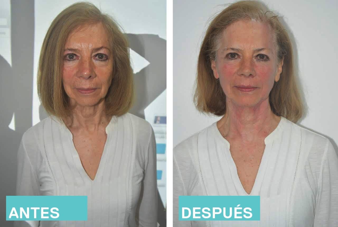 El Ultraformer es uno de los procedimientos más efectivos que pueden ayudar a esta piel a recobrar su calidad y belleza. (ESPECIAL)